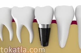 implant istanbul, implant tedavisi, diş sağlığı