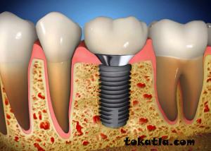 implant istanbul, doğal diş görünümü, implant tedavisi