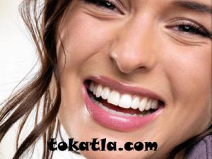 estetik diş hekimliği, estetik diş, diş kaplama