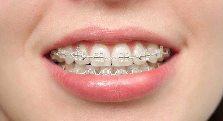 şeffaf diş teli, şeffaf diş teli fiyatları, şeffaf diş teli taktırma