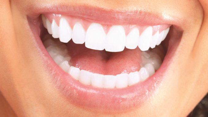 diş estetiği ücreti, diş estetiği yapımı