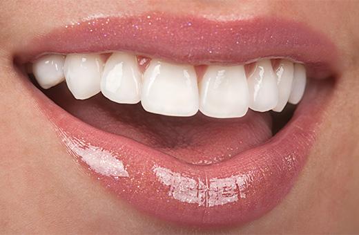 lamine dişin zararı, lmaine diş zararlı mı