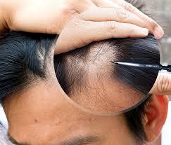 saç ektirme merkezi, saç ektirme işlemi