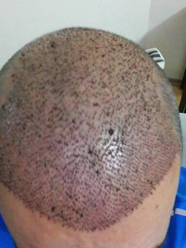 saç ekimi, saç ekimi yaptırma, kimler saç ektirir