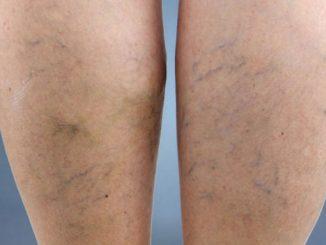 kılcal damar varisi, varis tedavisi, kılcal damar varis tedavisi yapımı