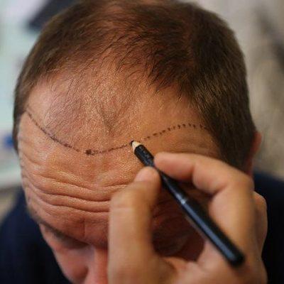 saç ekimi, saç ekimi süresi, saç ekimi tedavi süreci