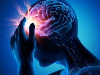 epilepsi nöbeti, epilepsi tipleri, epilepsi nöbet tipleri