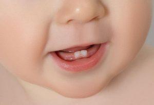 bebek diş çıkarma, bebeklerde diş çıkarma evresi, bebeklerdeki diş çıkarma evresini atlatma