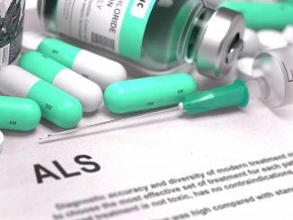 als tedavisi, als tedavisi yapımı, als tedavi yöntemleri neler