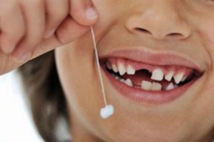 iş stresi ve ortaya çıkardığı sorunlar, diş kaybı nedenleri, iş stresi ve diş kaybı