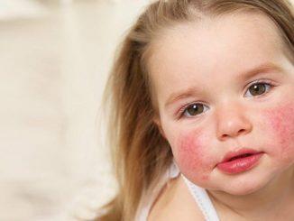 alerjiler ne zaman ortaya çıkar, yaygın olan alerjiler, alerji belirtileri