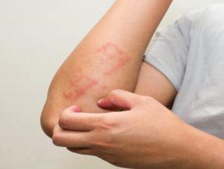 alerjik rinit nedir, alerjik rinit nedenleri, alerjik rinit belirtisi