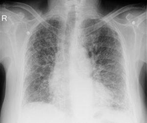 pulmoner fibrozis ne demek, pulmoner fibrozis belritisi, pulmoner fibrozis tanısı